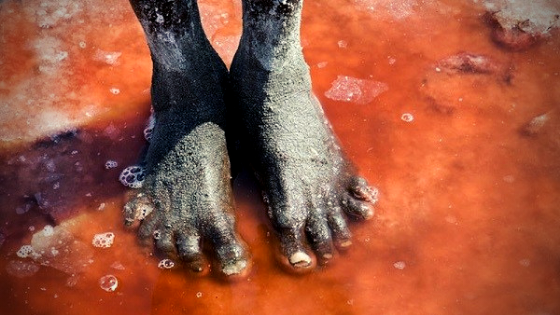 Lake Natron Effect on human Life